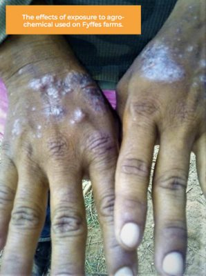 Chemical Burns on a Farmworkers Hands - Fyffes Farm